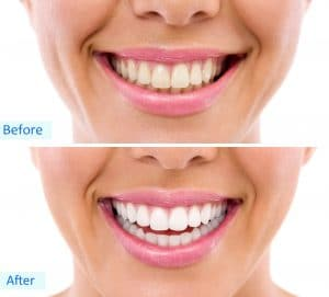 cleveland teeth whitening