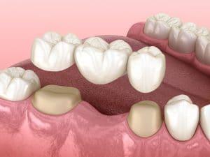 cleveland dental bridges