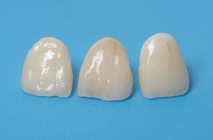 cleveland dental crowns cerec