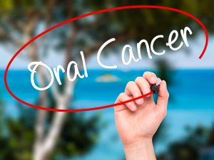 cleveland oral cancer screening