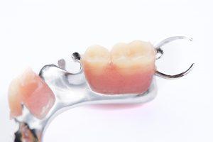 cleveland dentures