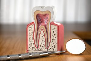 cleveland root canal