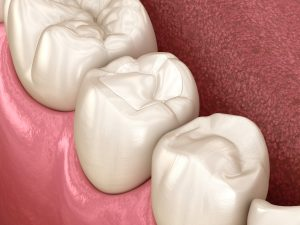 cleveland tooth filling