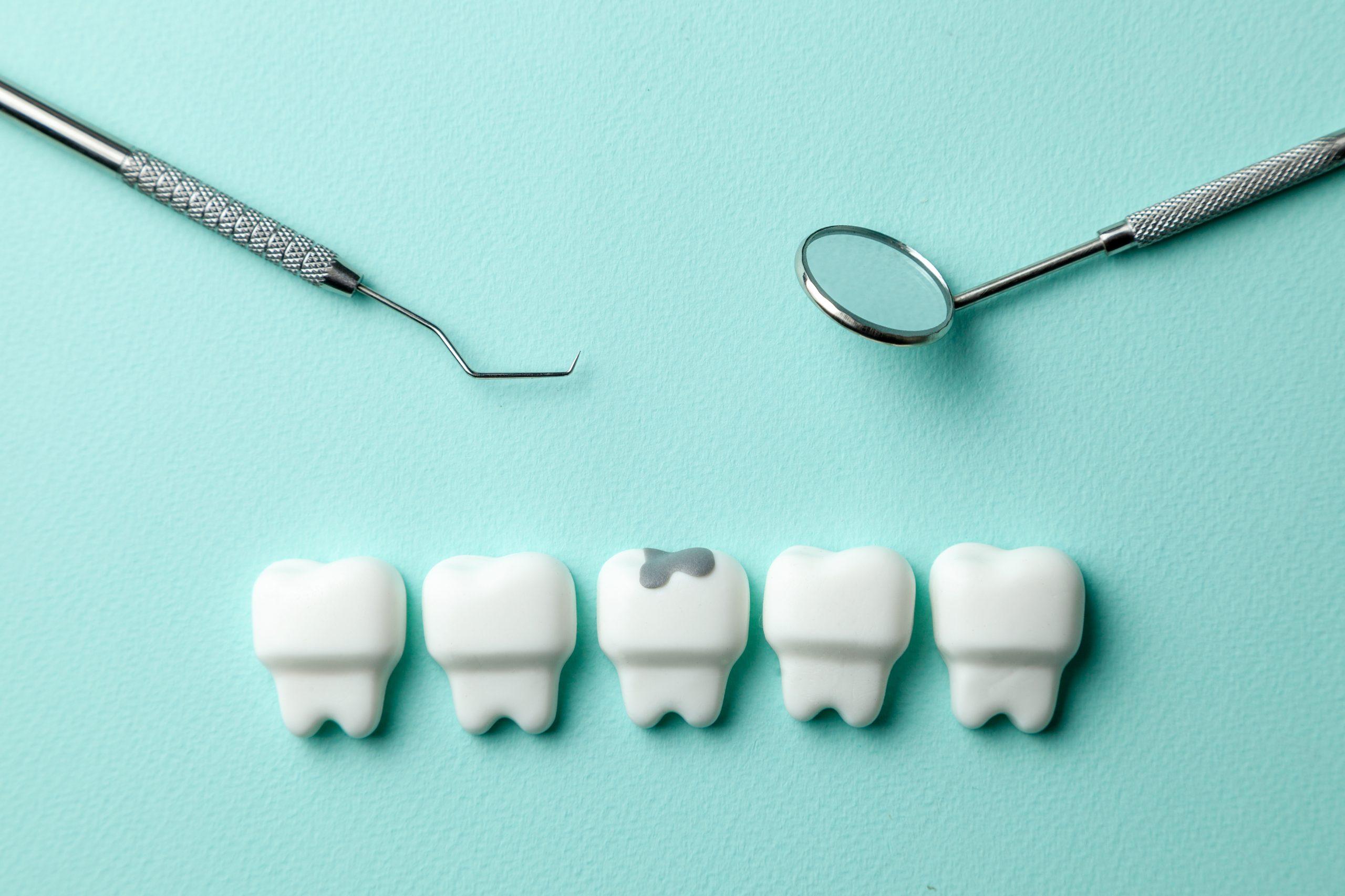 cleveland dental fillings