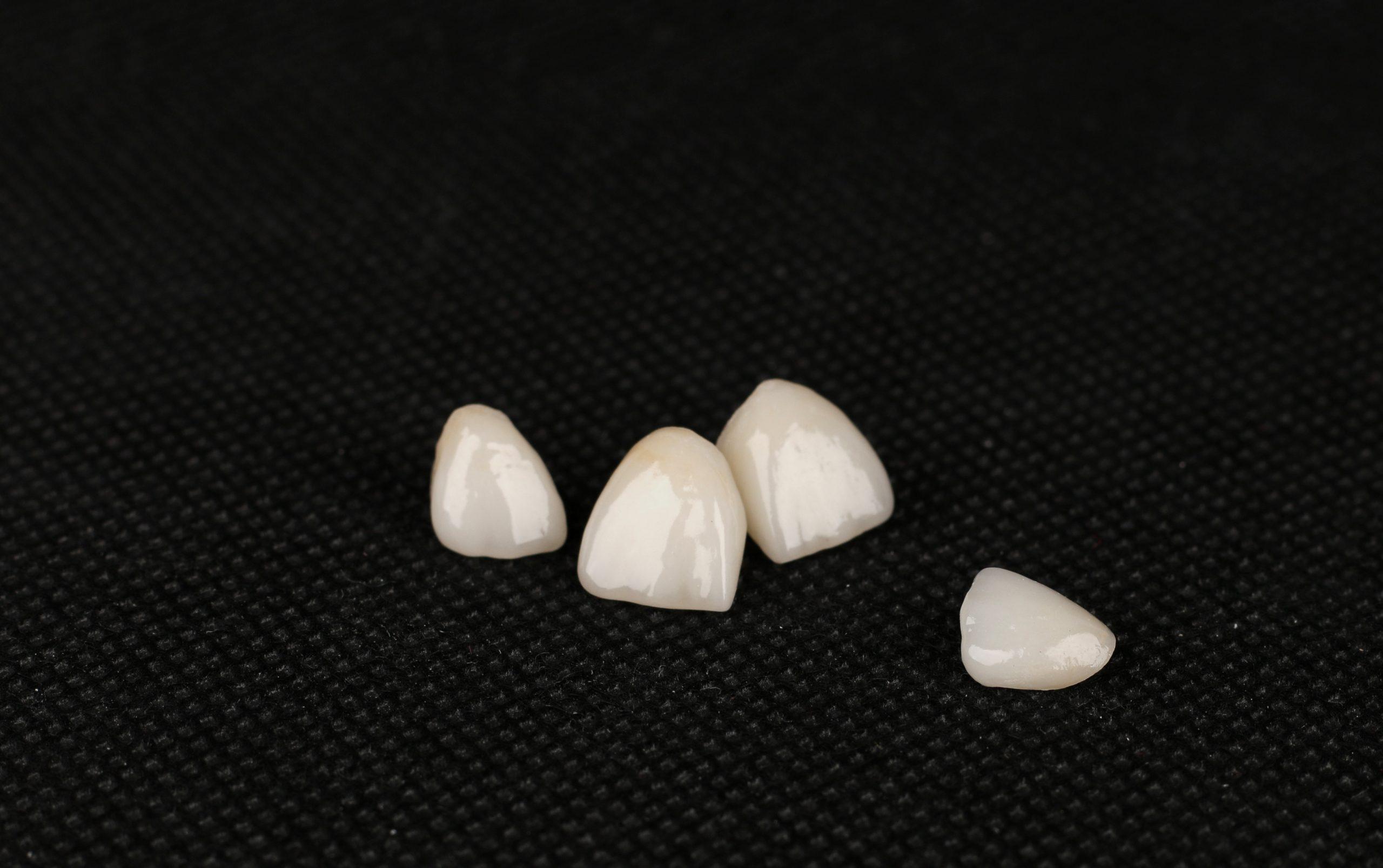 cleveland dental crowns