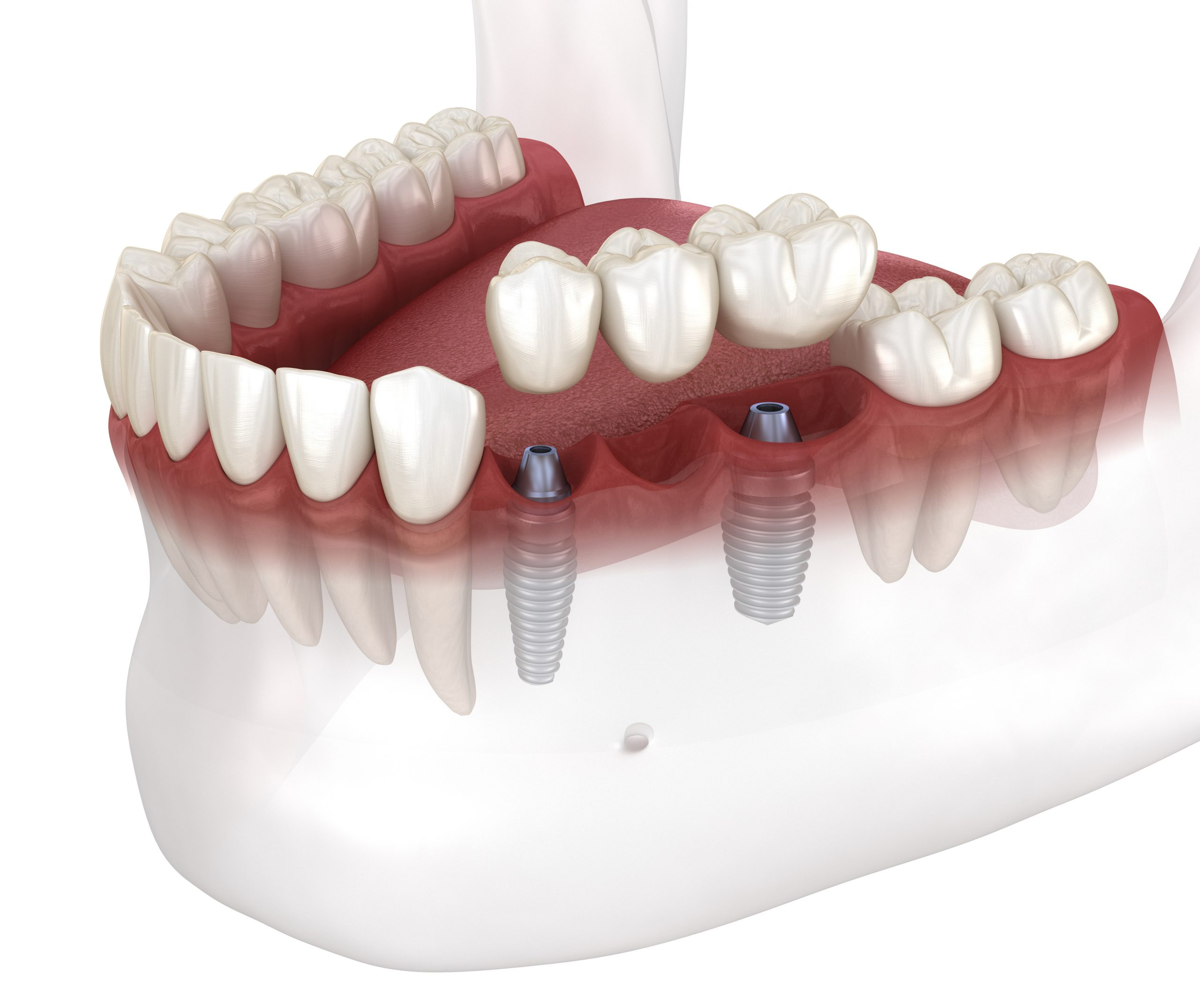 cleveland dental bridge