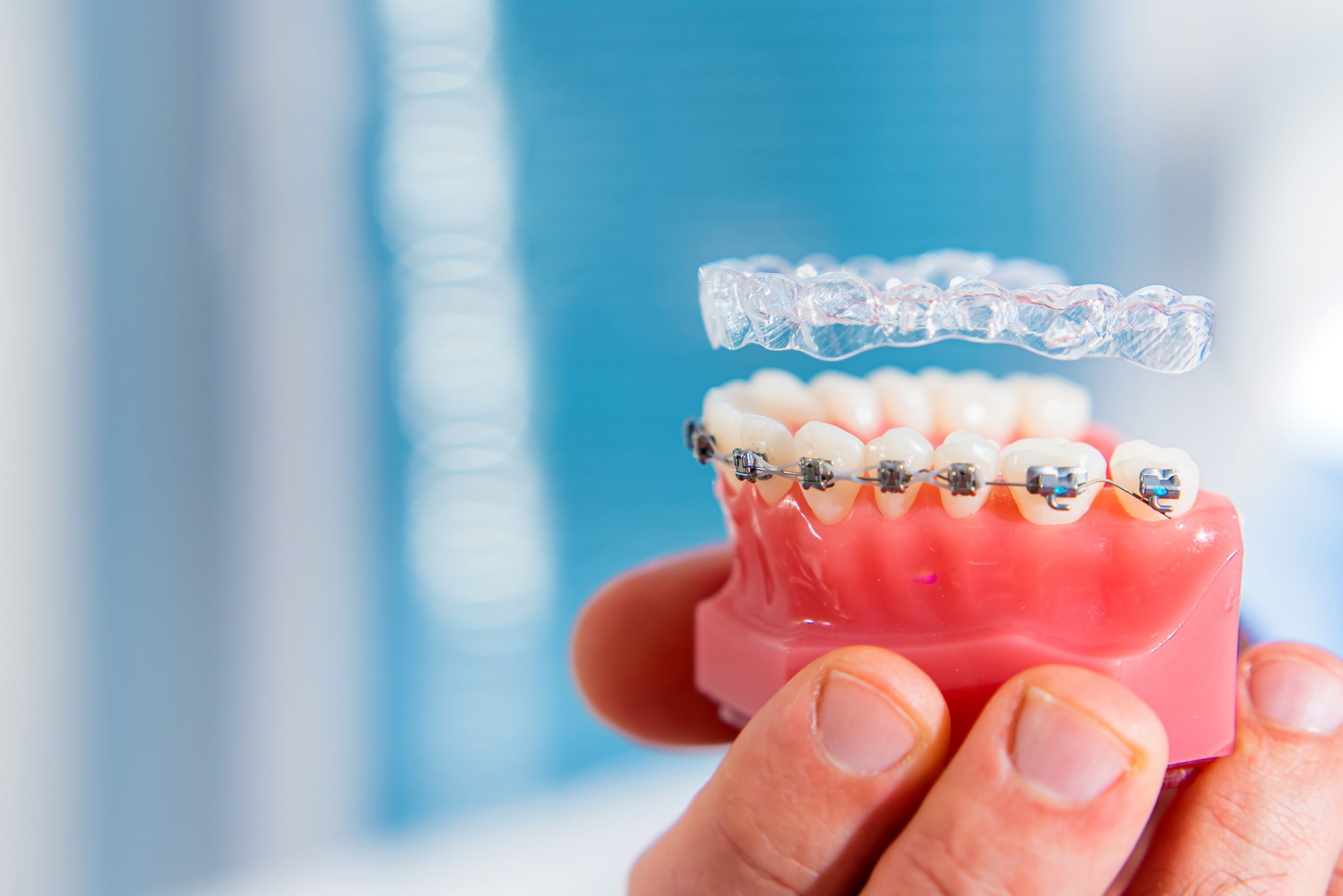 cleveland orthodontic care