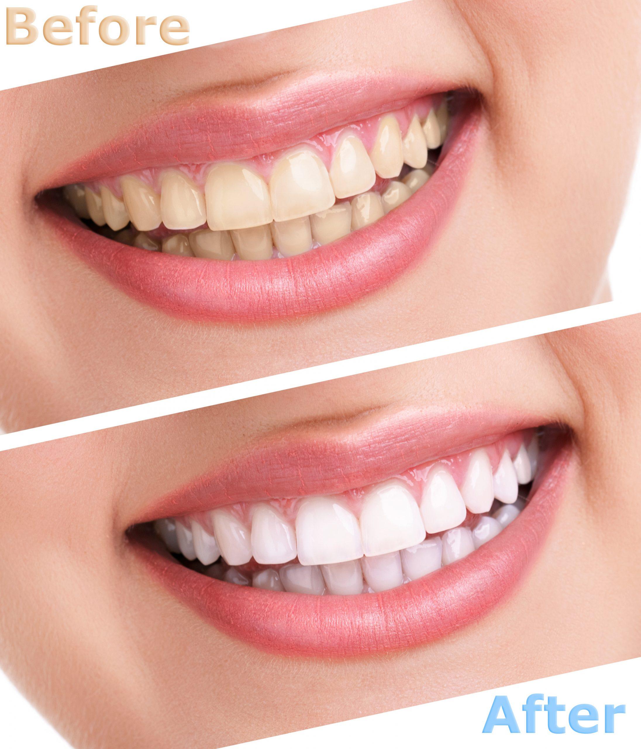 cleveland teeth whitening