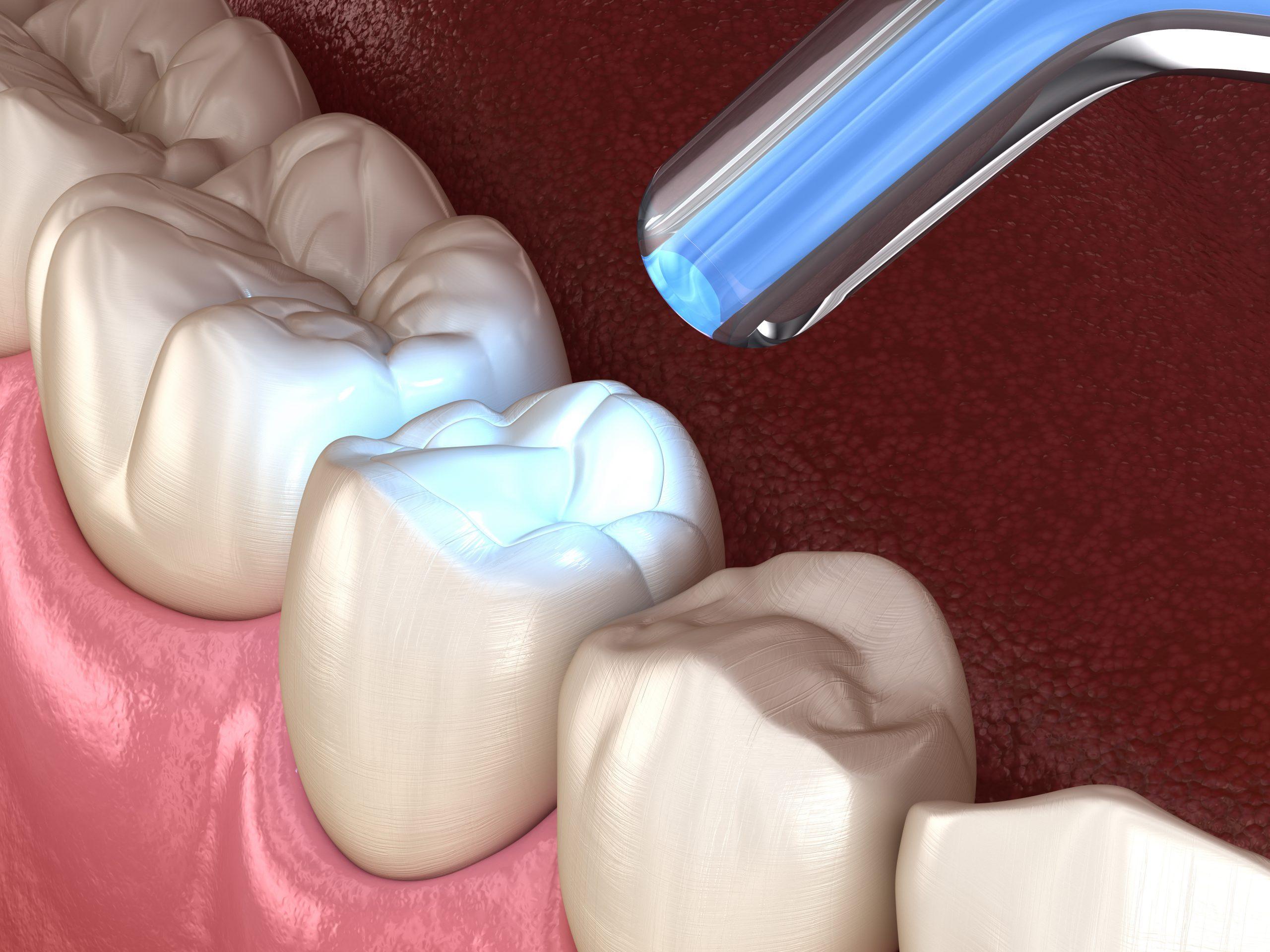 cleveland dental filling