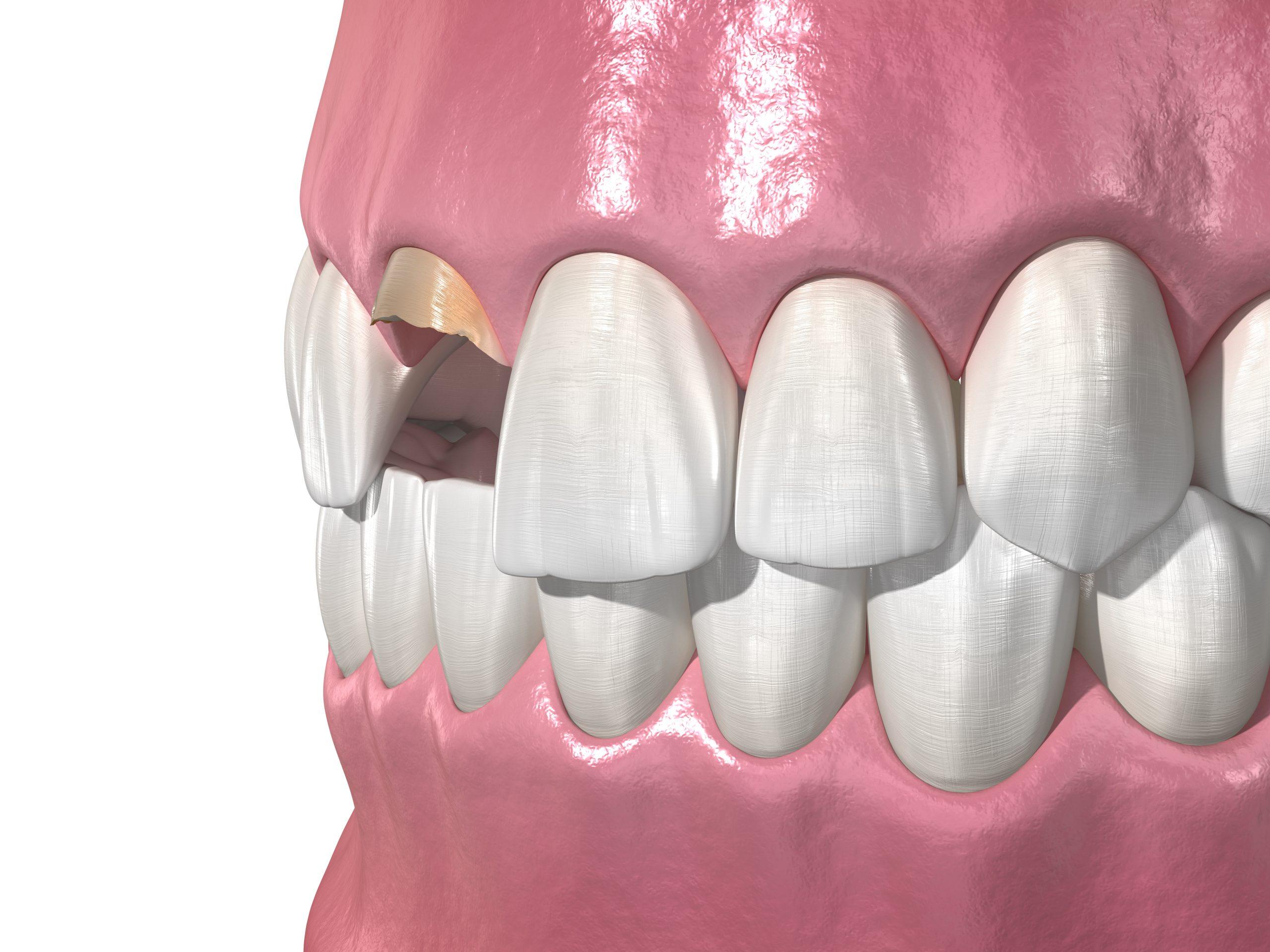 cleveland dental bonding