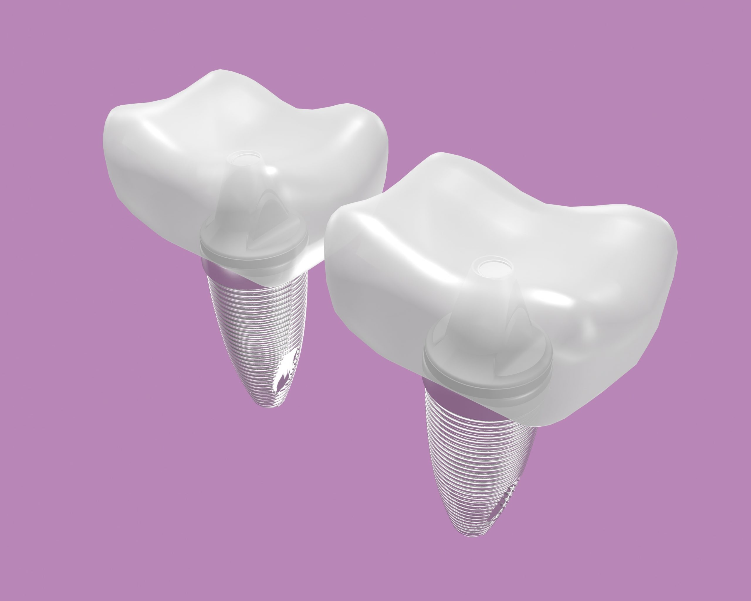 cleveland dental implants