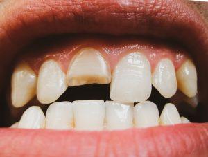 cleveland dental emergencies