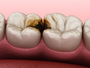 cleveland cavities fillings