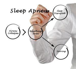 cleveland treating sleep apnea